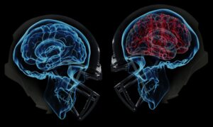 Post Concussion Syndrome Is Actually Neck Injury?