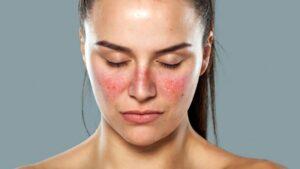 Natural Lupus Treatment