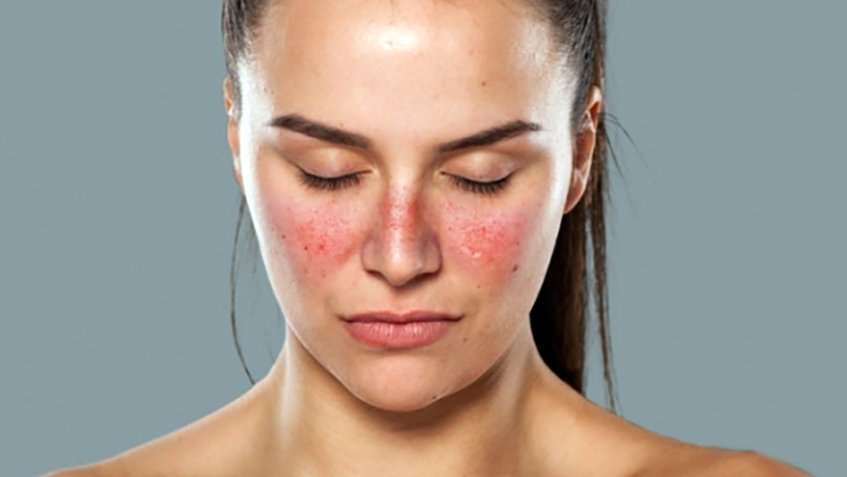 Natural Lupus Treatment Alternative Blairchiropractic