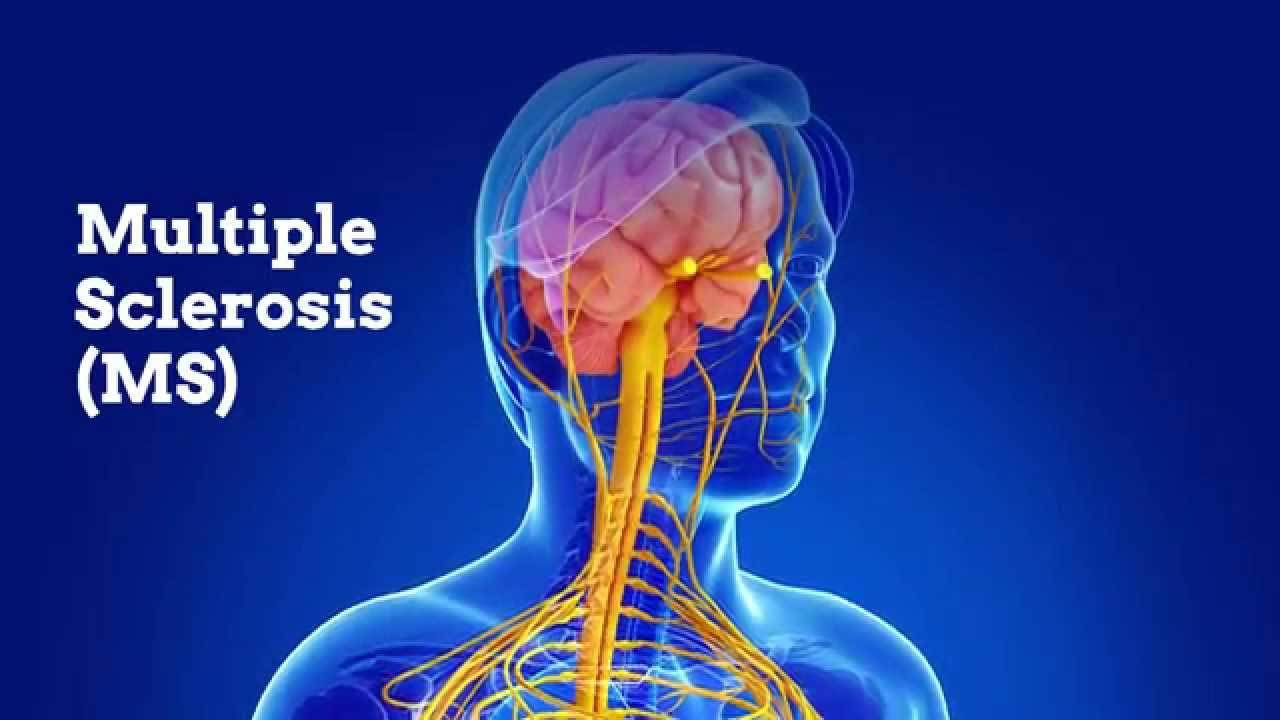 blair-upper-cervical-care_multiple-sclerosis